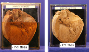 Vorher, nachher: Das Präparat eines Herzens mit Herzklappenentzündung haben Studierende der FAU in aufwändiger Arbeit rekonstruiert und aufgefrischt. (Foto: Philip Eichhorn)