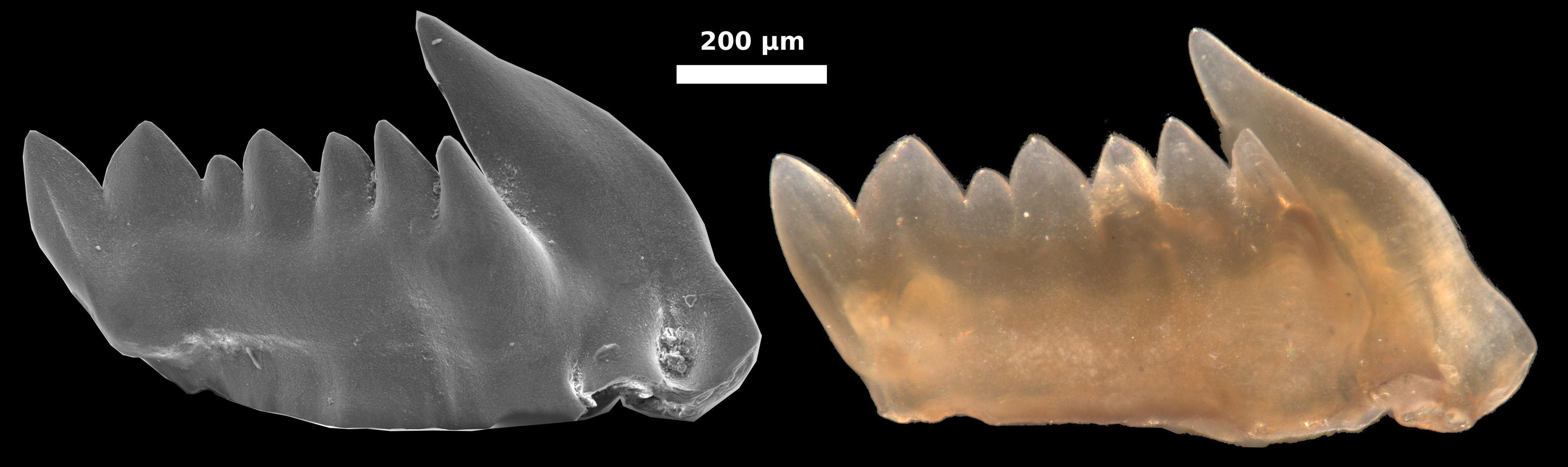 Zähne wachsen nach innen